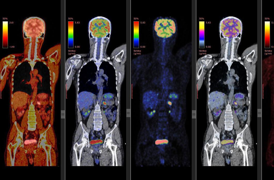 PET/CT scan of a patient